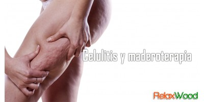 Celulitis y maderoterapia